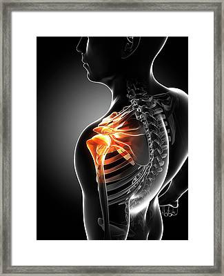 Shoulder Pain Framed Print by Sciepro/science Photo Library