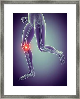 Human Knee Joint Framed Print