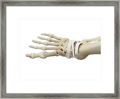 Human Foot Anatomy Framed Print by Sciepro