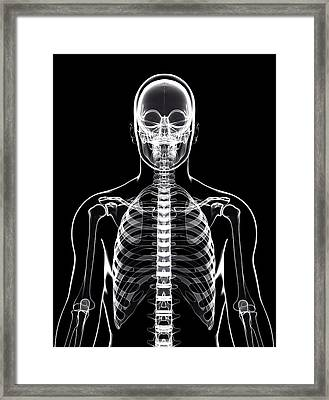 Human Skeleton Framed Print by Pixologicstudio/science Photo Library