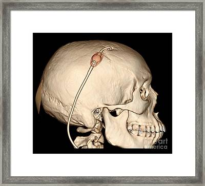 3d Ct Reconstruction Of Intracranial Framed Print by Living Art Enterprises, LLC