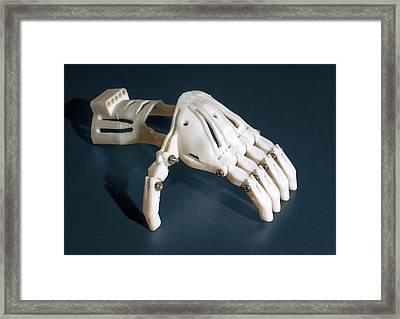 3d Printed Prosthetic Hand Framed Print