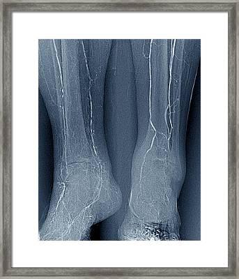 Arteritis In Diabetes Framed Print