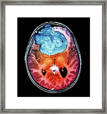 Benign Brain Tumour Framed Print by Zephyr
