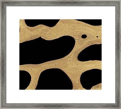 Bone Cross-section Framed Print