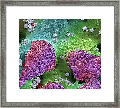 Bone Marrow Framed Print