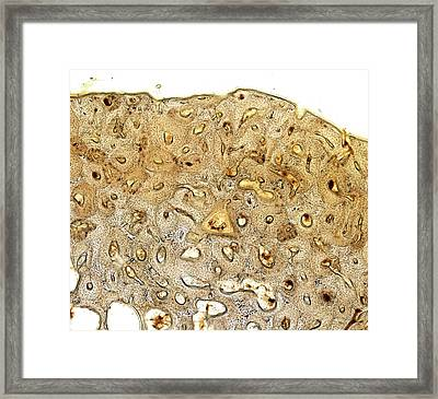Bone Framed Print by Microscape