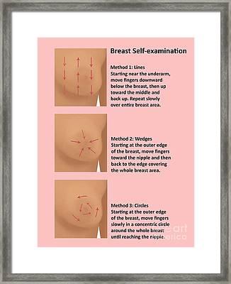 Breast Self Examination Framed Print by Gwen Shockey
