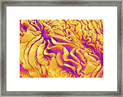 Fimbriae Of A Fallopian Tube Framed Print