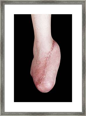 Foot Reconstruction After Toe Amputations Framed Print