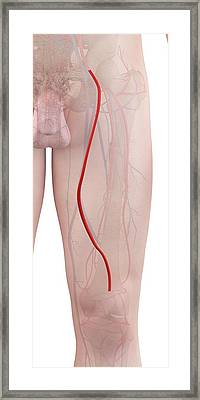 Human Leg Artery Framed Print by Sciepro