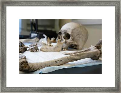 Human Remains In A Forensics Laboratory Framed Print