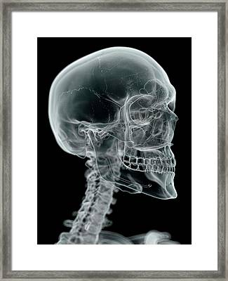 Human Skull And Neck Framed Print