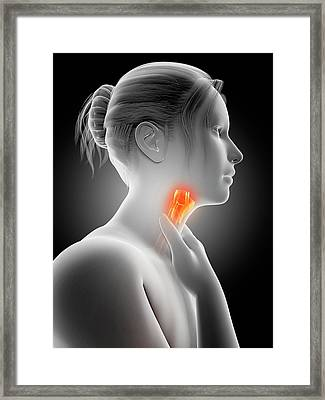 Inflammation Of The Larynx Framed Print
