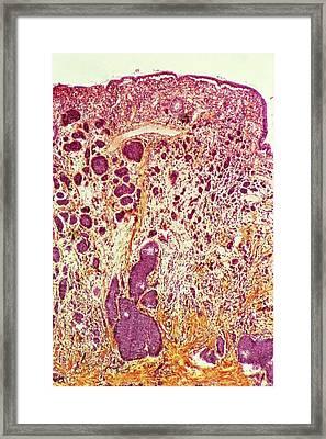 Intestinal Cancer Framed Print