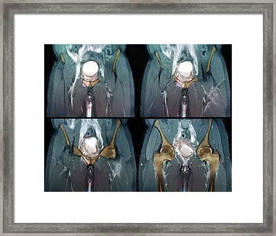 Metastatic Bladder Cancer Framed Print