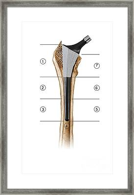 Prosthetic Hip Joint And Gruen Zones Framed Print