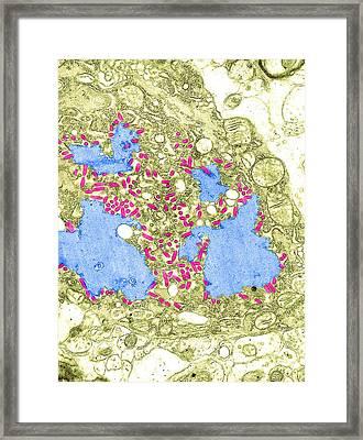 Rabies Virus, Tem Framed Print by Science Source