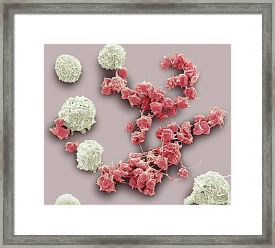 White Blood Cells And Platelets Framed Print