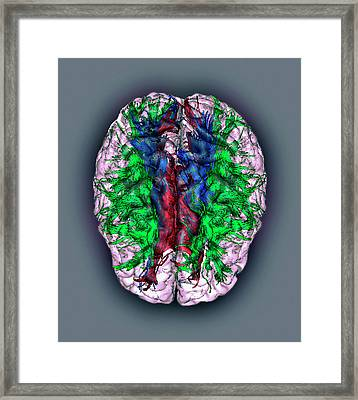 White Matter Fibres Framed Print by Zephyr/science Photo Library