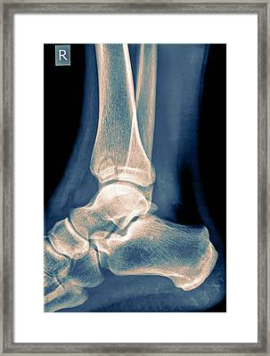 Ankle X-ray Framed Print by Photostock-israel