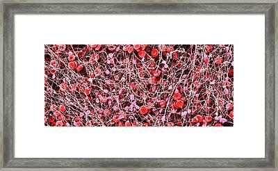 Blood Clot Framed Print by Susumu Nishinaga
