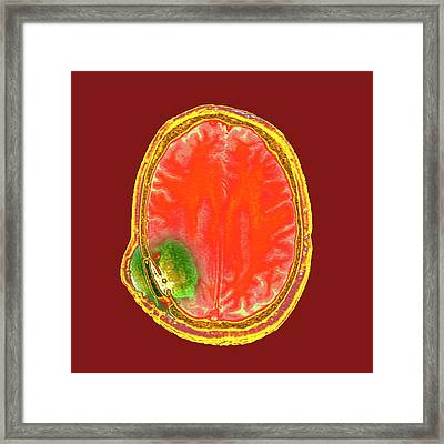 Brain Cancer After Surgery Framed Print by Dr P. Marazzi
