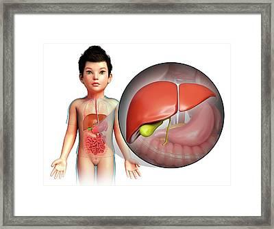Child's Liver Framed Print by Pixologicstudio/science Photo Library