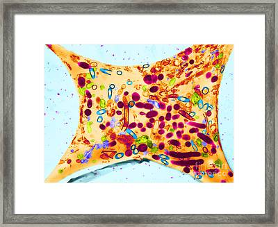 Dalkon Shield Iud Tailstring Framed Print by David M. Phillips