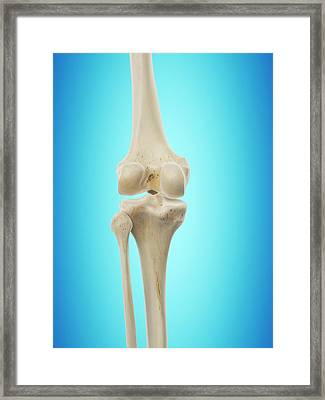 Human Knee Joint Framed Print by Sciepro