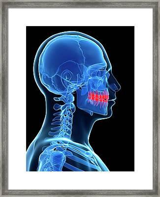 Human Teeth Framed Print by Sebastian Kaulitzki
