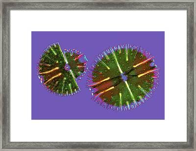 Micrasterias Desmids, Light Micrograph Framed Print by Science Photo Library