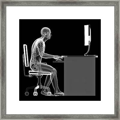 Person Sitting With Incorrect Posture Framed Print by Sebastian Kaulitzki