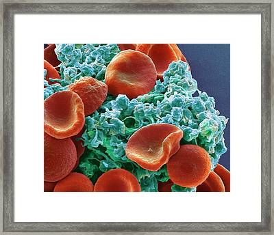 Red Blood Cells And Platelets Framed Print