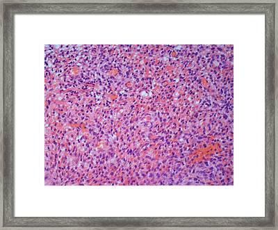 Uterine Cancer Framed Print by Steve Gschmeissner