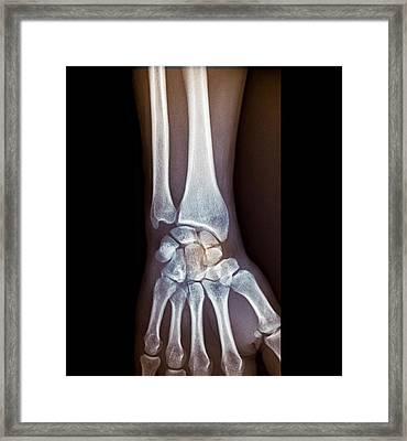 Wrist Fracture Framed Print