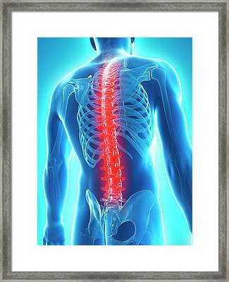 Back Pain Framed Print by Sciepro/science Photo Library