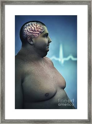 Obesity Framed Print