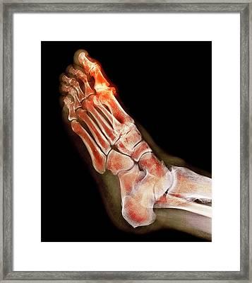 Degenerative Foot Deformation Framed Print by Dr P. Marazzi