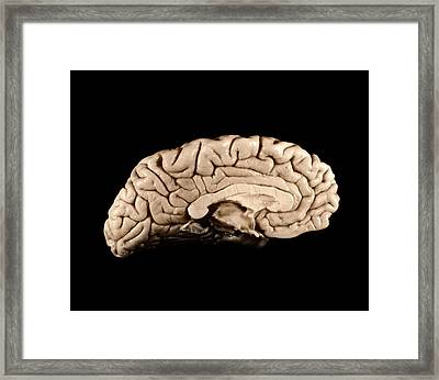 Einstein's Brain Framed Print by Otis Historical Archives, National Museum Of Health And Medicine