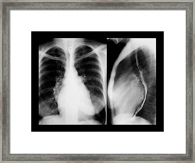 Enlarged Heart Framed Print by Zephyr/science Photo Library