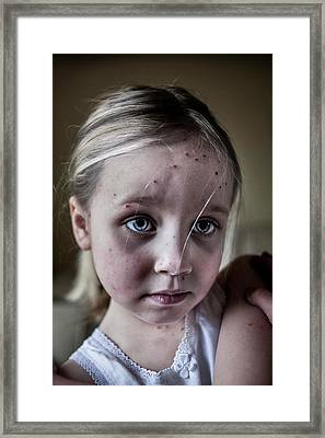 Girl With Chickenpox Framed Print