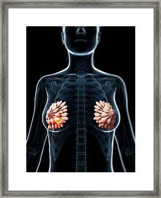 Human Breast Cancer Framed Print