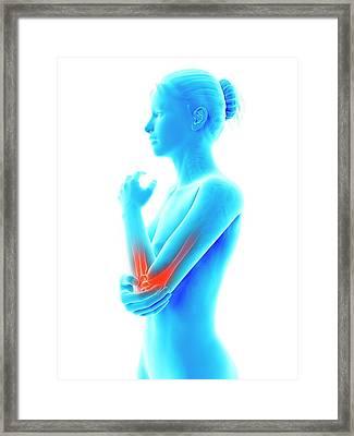 Human Elbow Joint Pain Framed Print by Sebastian Kaulitzki