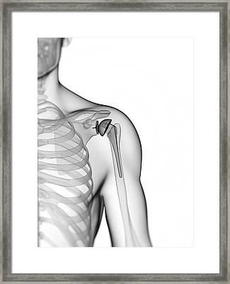 Human Shoulder Replacement Framed Print by Sebastian Kaulitzki