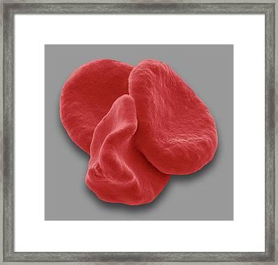 Red Blood Cells Framed Print by Steve Gschmeissner