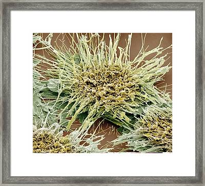 Vaginal Cancer Cells, Sem Framed Print by Science Photo Library