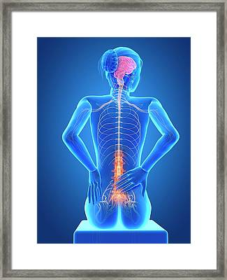 Human Back Pain Framed Print by Sebastian Kaulitzki