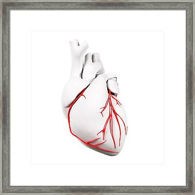 Coronary Arteries Framed Print by Sciepro/science Photo Library