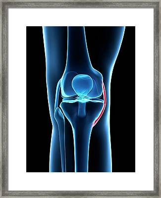 Human Knee Ligament Framed Print